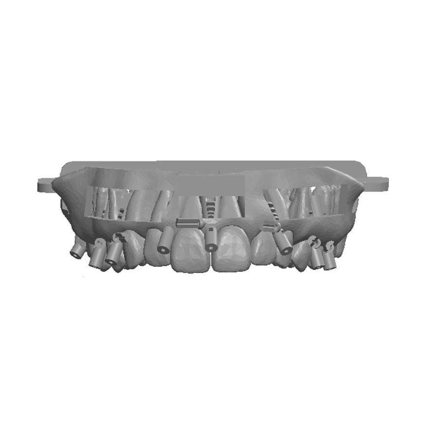 Maxilaire-modele-3D-Bob-quicksleeper5